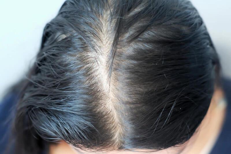女性の薄毛治療におすすめなAGAクリニック