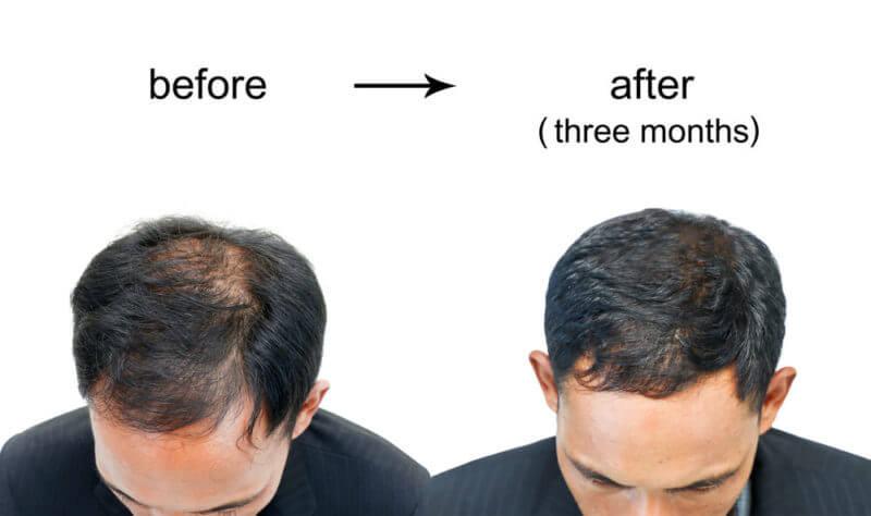 AGAクリニックと育毛サロン比較