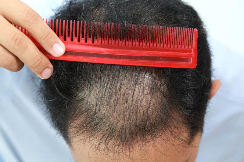 プロペシアの効果と発毛までの期間